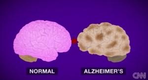 Actualmente son capaces de ver la diferencia entre un cerebro sano y uno afectado. (Crédito: CNN)