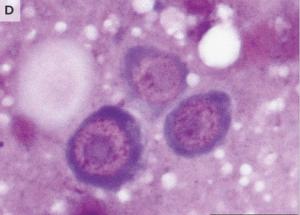 Las células cancerígenas detectadas en el hombre eran más pequeñas que las de su cuerpo. Pertenecían un cuerpo externo.