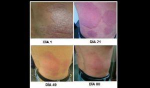 La página de Dermabón muestra estos resultados en personas que usan el producto.