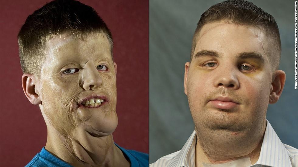 Mitch Hunter fue la segunda persona en EE.UU. en recibir un trasplante de rostro.