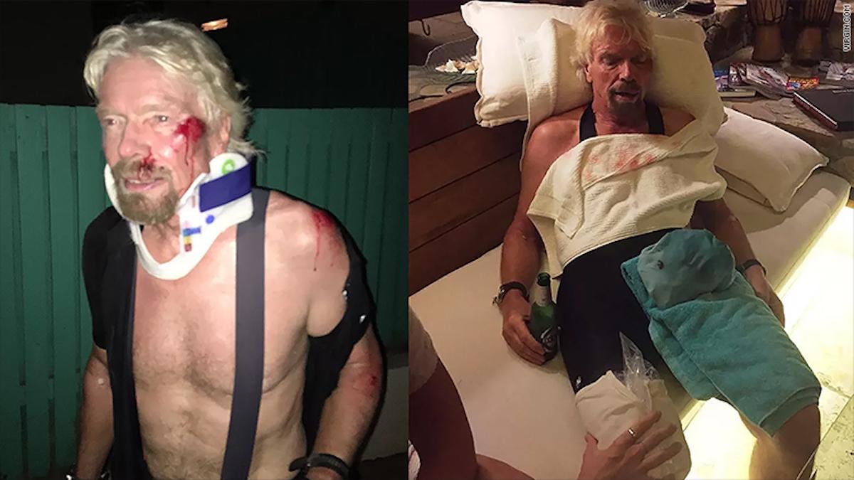 Brandson sufrió heridas en su cara y en su hombro.