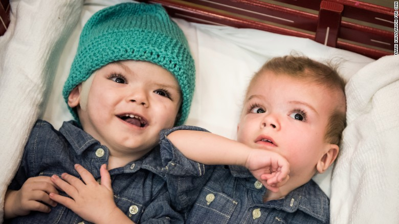 161214154047-01-conjoined-twins-1213-exlarge-169