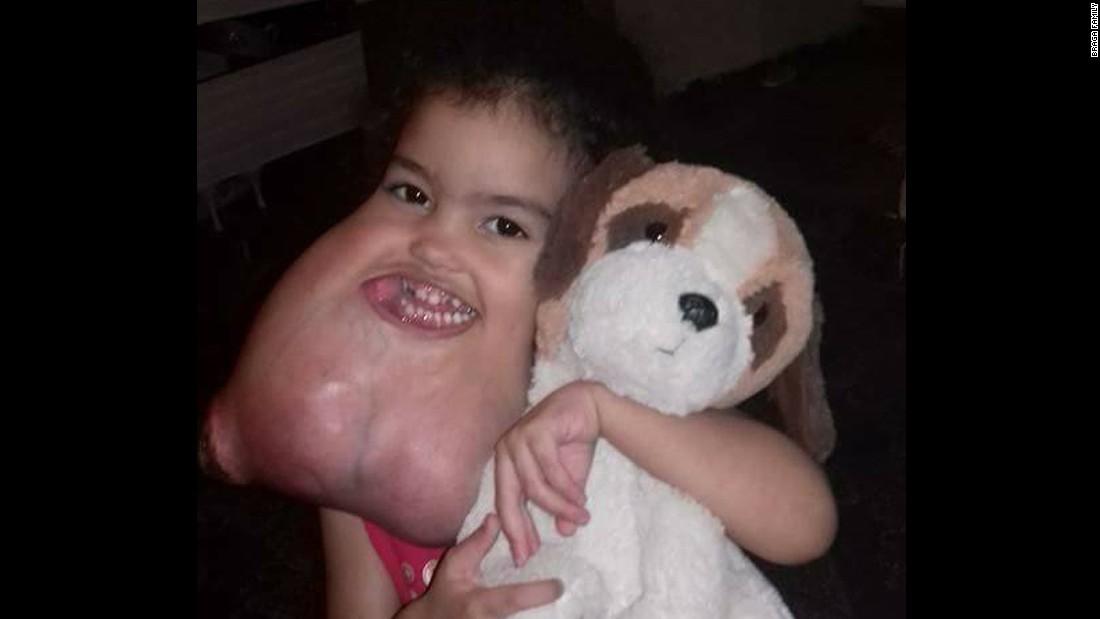 Los médicos calculan que el tumor facial de Melyssa pesaba 5 libras (unos 2 kilos medio).