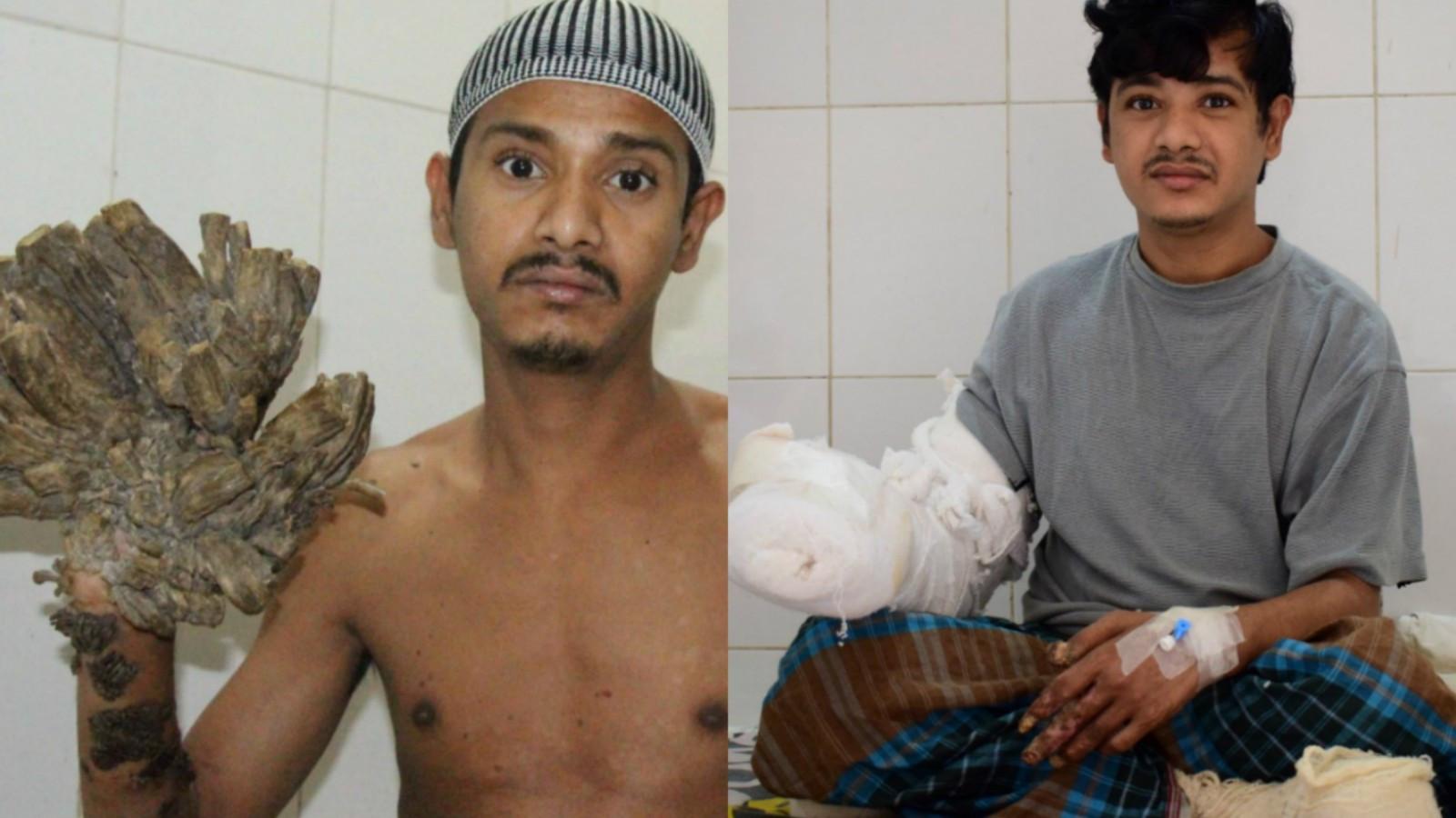Abul Bajandar, el famoso 'hombre-árbol' de Bangladesh, vivió con sus verrugas en los dedos de sus manos, en las palmas y en los pies durante muchos años, antes de la primera cirugía para quitárselas, en febrero del 2016.