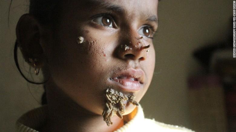 Sahana Khatun, de 10 años, llegó al Hospital del Colegio Médico de Dacca con varias marcas y brotes inusuales en su cara.