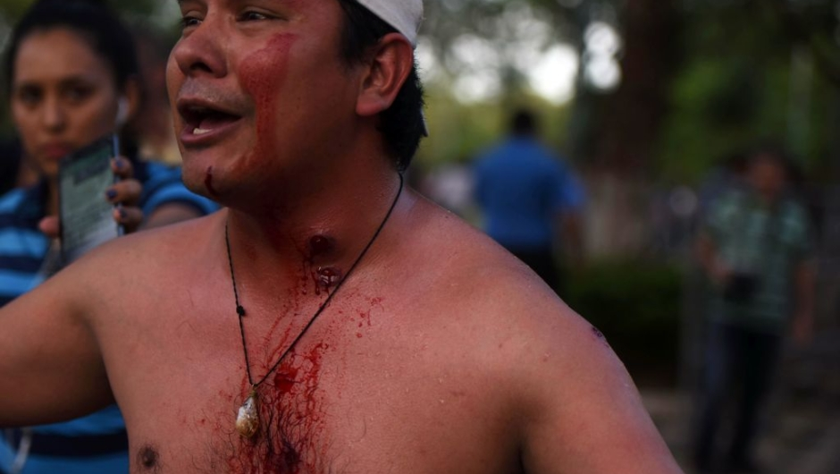 "A demonstrator, wounded during clashes with riot police agents, takes part in a protest against the approval of a constitutional amendment for presidential reelection outside Congress in Asuncion, on March 31, 2017. Ruling Colorado party senators and their allies, in a so-called ""parallel Senate"", unexpectedly approved an amendment Friday that would allow President Horacio Cartes to run for reelection in 2018, triggering protests that led to clashes between opposition demonstrators and the police. / AFP PHOTO / NORBERTO DUARTE (Photo credit should read NORBERTO DUARTE/AFP/Getty Images)"