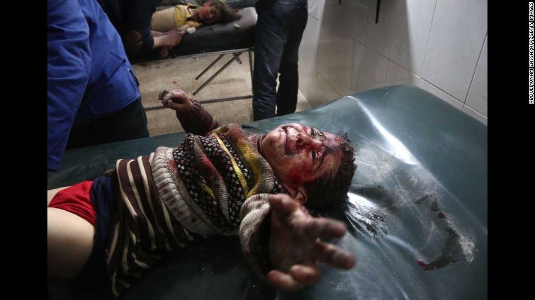 Un niño herido llora mientras recibe tratamiento en un hospital improvisado en Hamouria, Siria.