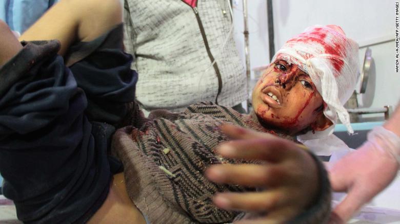 Un niño herido recibe tratamiento en Douma después de bombardeos en el pueblo de Mesraba.