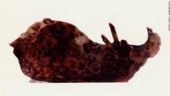 trasplante memoria caracoles ucla cientificos trastornos