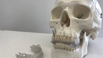 El dispositivo bucal creado para prevenir la apnea del sueño se produce en impresora 3D