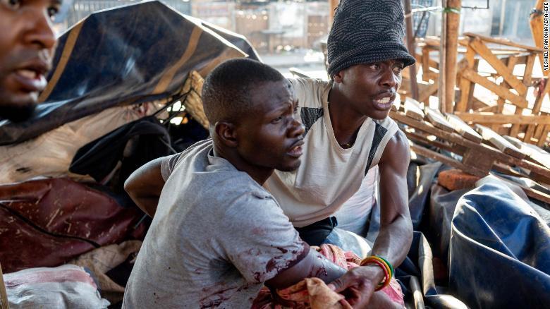 Un hombre es vendado después de ser herido por disparos al aire del ejército de Zimbabwe.