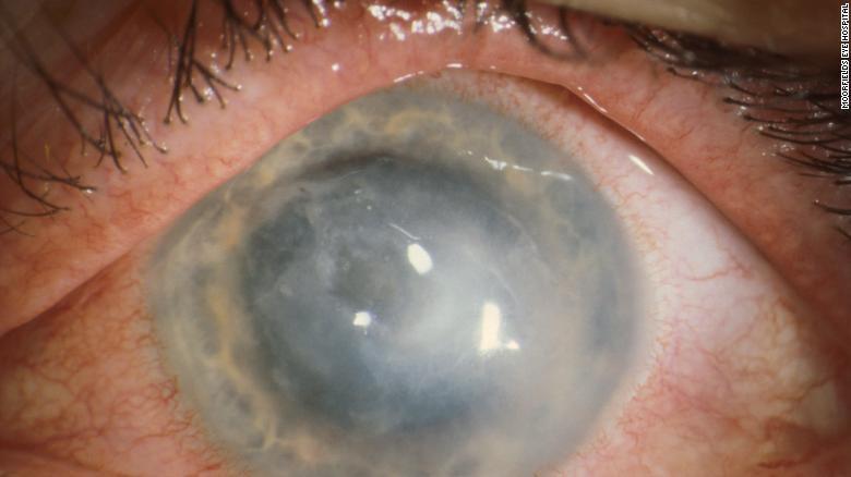 Algunos pacientes con queratitis por Acanthamoeba requieren trasplantes de córnea.