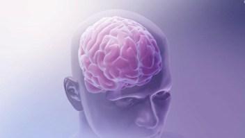 Las características de la demencia de Lewy