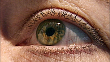 ¿Cómo prevenir la retinopatía diabética?