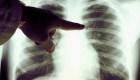"""Giselle Guerra: """"En Estados Unidos existen muchos pacientes con fibrosis pulmonar"""""""