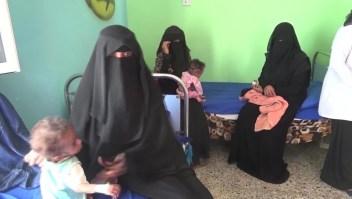 Los últimos respiros de Aquil, un niño de Yemen