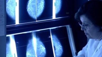 ¿Cómo han ayudado los avances tecnológicos al tratamiento del cáncer?
