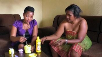 Ruanda prohíbe el uso de productos para blanquear la piel