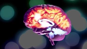 Los desafíos que enfrentan los pacientes con epilepsia