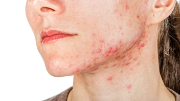 Los mitos y verdades del acné