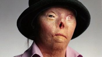Murió la mujer del rostro contra conductores ebrios