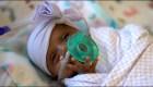 Esta es Saybie, la bebé más pequeña del mundo