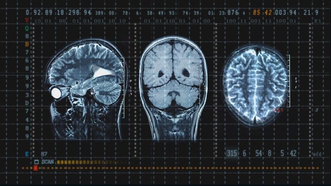 El deporte y los daños cerebrales