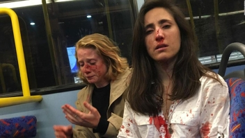 Atacan a pareja de lesbianas en un autobús