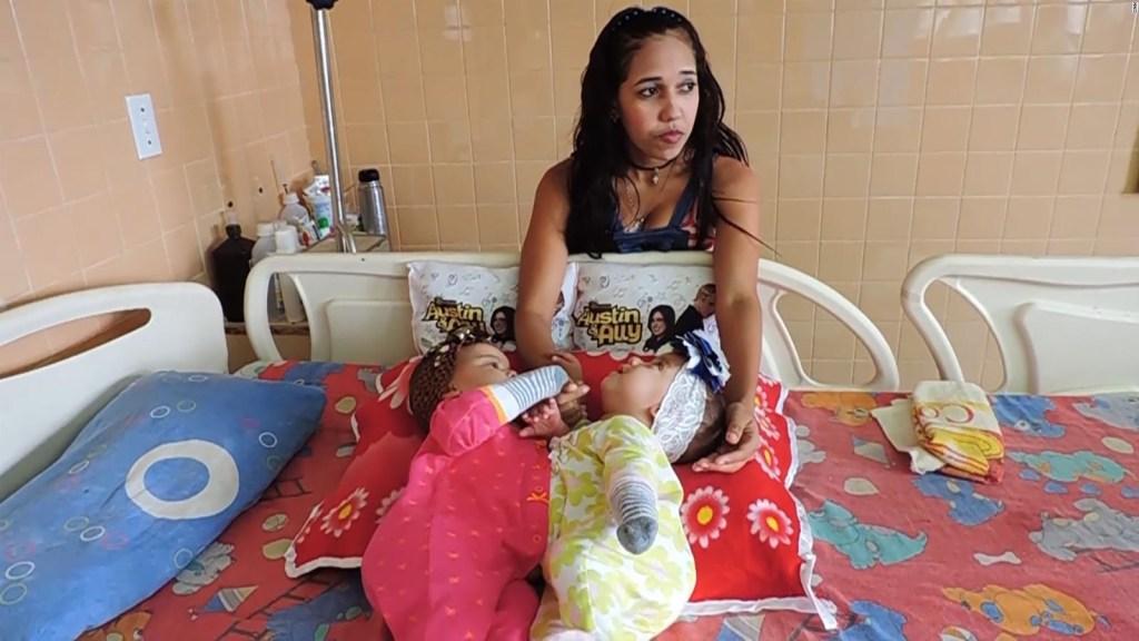 Separan a siamesas en Maracaibo, una ciudad marcada por la crisis en Venezuela