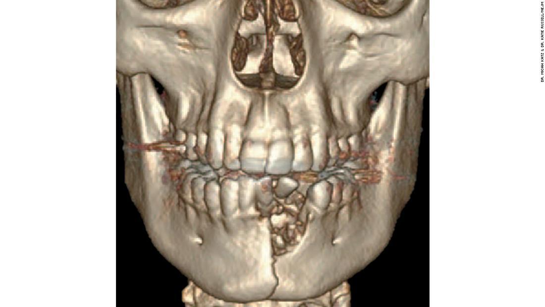 La radiografía del joven de 17 años que muestra su mandíbula destrozada y los dientes desplazados.