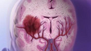 Aprende a identificar las señales de un derrame cerebral