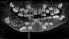 Remueven 526 dientes de la mandíbula de un niño