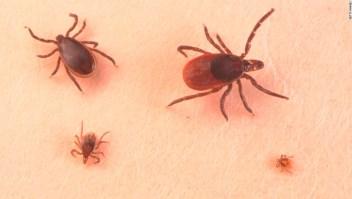 Enfermedad de Lyme