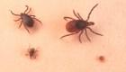 ¿Qué es la enfermedad de Lyme y cuáles son sus síntomas?