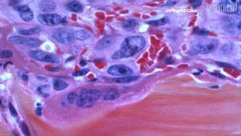 Científicos crean mapa genético de cáncer