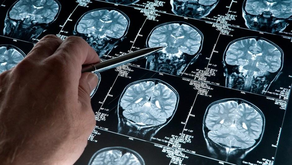 ¿Cómo mantener el cerebro sano? (Foto de Télam).