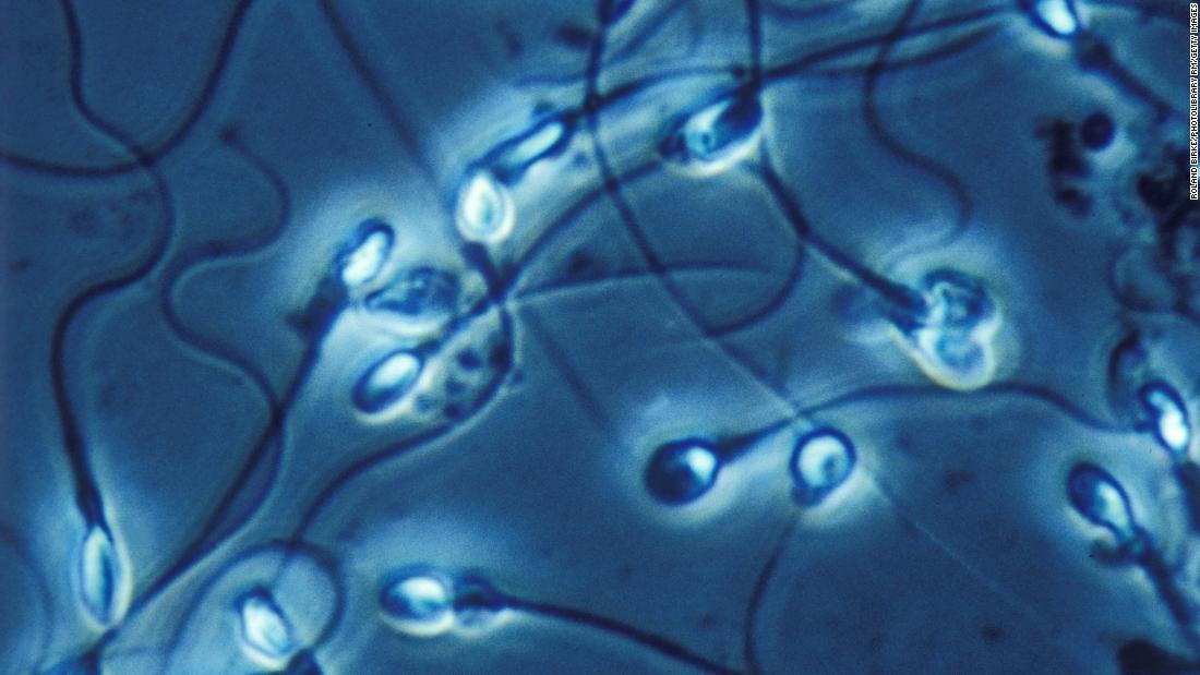 Una dieta occidental de baja calidad mata el conteo de esperma y reduce la testosterona masculina, según un estudio