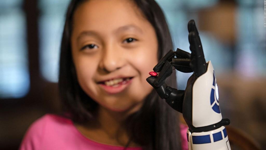 Fanática de Star Wars obtiene brazo biónico de R2-D2