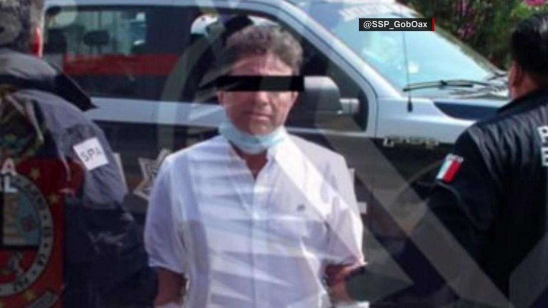 Presunto responsable de ataque con ácido a saxofonista permanecerá en prisión preventiva