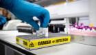 Anticuerpos monoclonales, la esperanza de los científicos