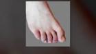 'Dedos de covid-19': otro síntoma de la enfermedad
