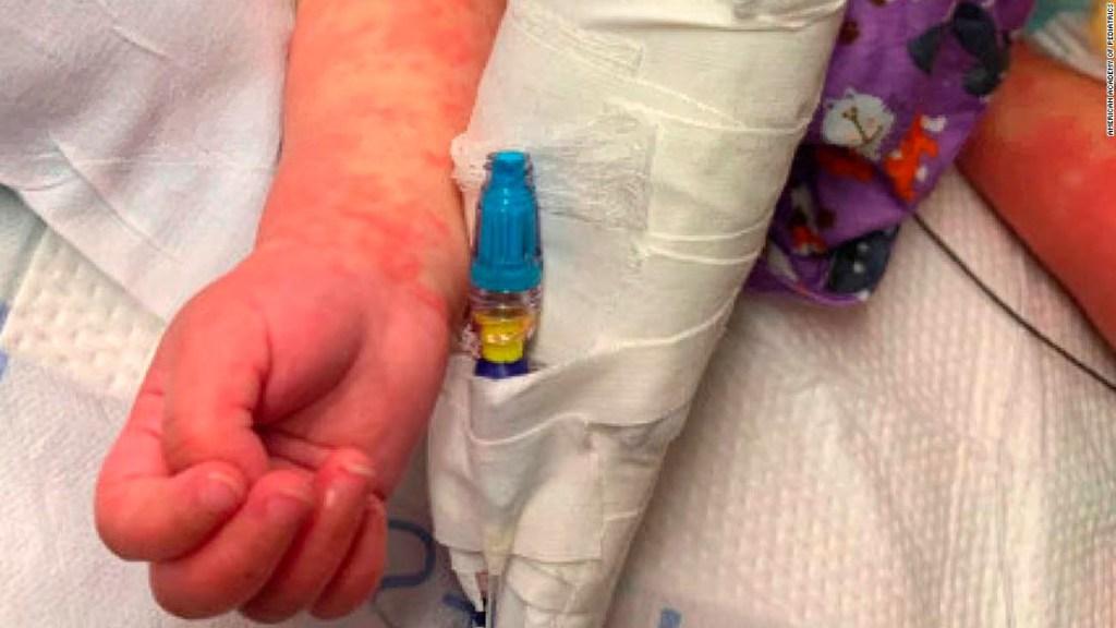 Los niños con presunto síndrome relacionado con covid necesitan atención inmediata, dicen los médicos