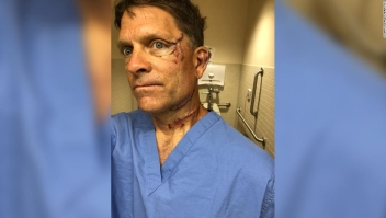 Un hombre en Colorado sobrevive al ataque de un oso en su cocina