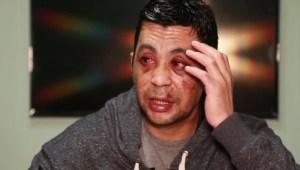 Lo golpearon y quemaron su casa porque tuvo covid-19