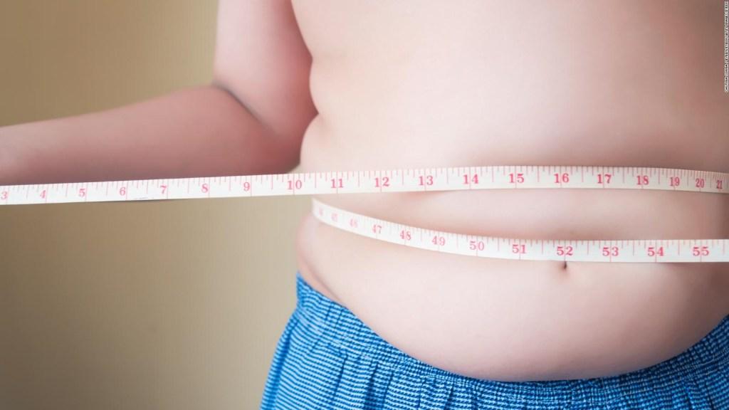 3 claves para combatir la obesidad, según especialista