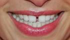 Estas 5 costumbres pueden estropear tus dientes