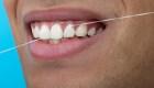 ¿Por qué usar hilo dental protege tu salud mental?
