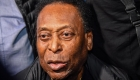 """Pelé, operado para remover una """"lesión sospechosa"""""""