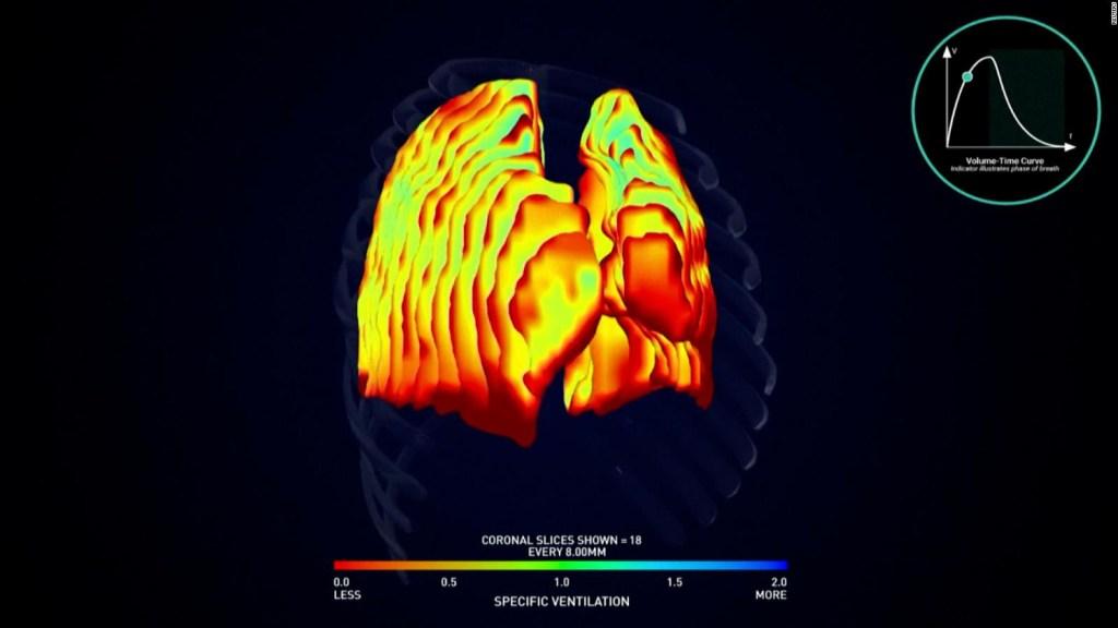 Estudian el síndrome post-covid con escáneres 4D