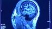 Niebla mental, consecuencia del covid-19 según estudio